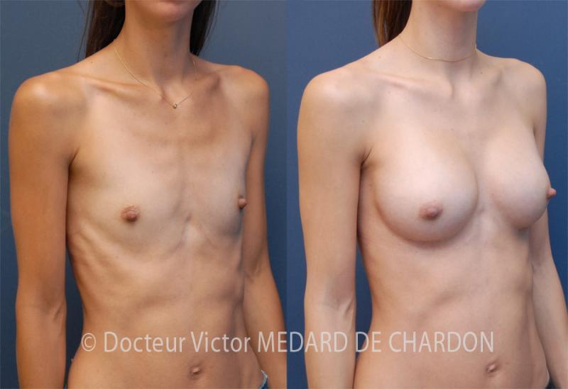 увеличение молочных желез с применением имплантатов анатомической формы со средним профилем объемом 340см³ через околососковый двухплоскостной доступ в плоскостьII