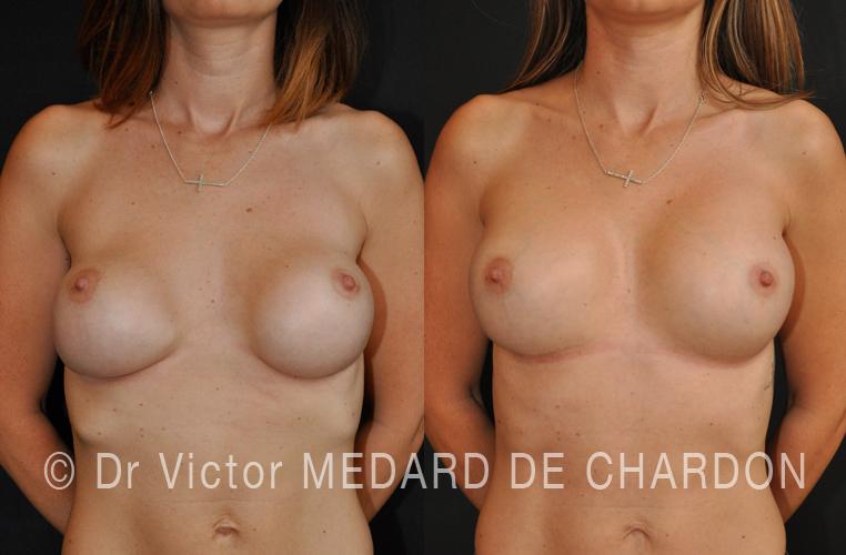 специалист-увеличение-груди