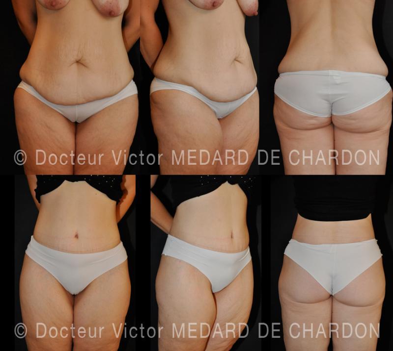 Подтяжка тела после большой потери веса
