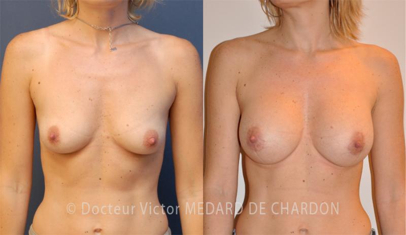 Увеличение молочных желез с применением имплантатов анатомической формы с высоким профилем объемом 275