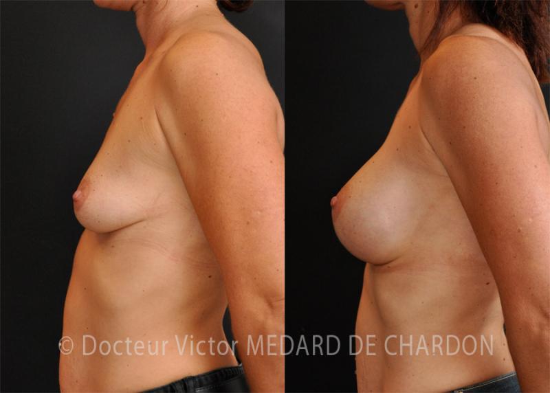 Увеличение молочных желез с применением имплантатов анатомической формы с высоким профилем объемом 350