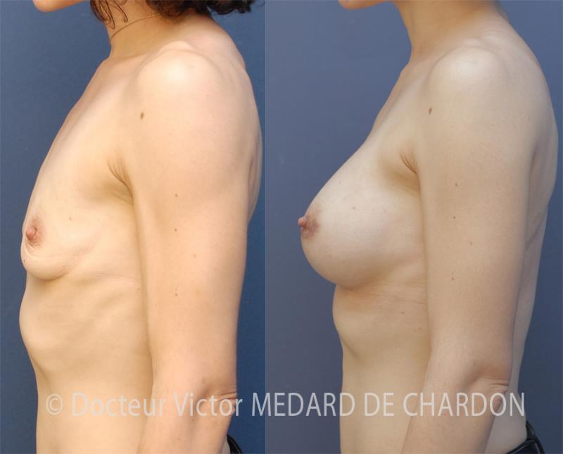 Увеличение молочных желез с применением имплантатов анатомической формы с высоким профилем объемом 370