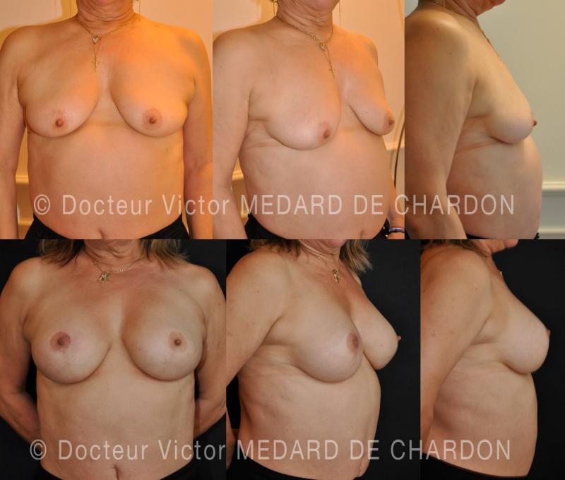 Гипотрофия молочных желез с птозом и дистопией втянутых сосков (маленькая обвисшая грудь с сосками, расположенными слишком близко друг к другу) на широкой грудной клетке.