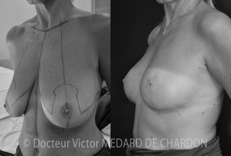 Птоз молочных желез после беременностей и кормления грудью