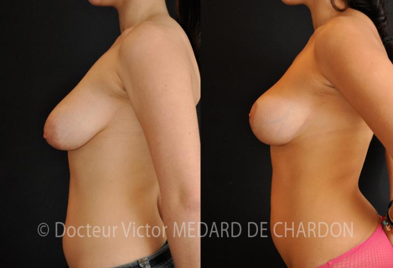 грудь птоз (провисание груди)