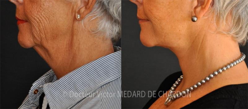 Шейно-лицевая подтяжка с липоаспирацией шеи (двойной подбородок)