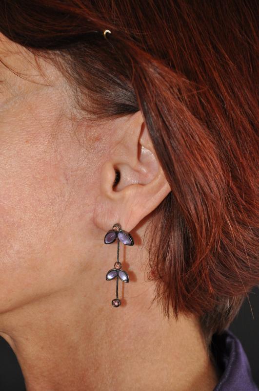 Рубцы при шейно-лицевой подтяжке