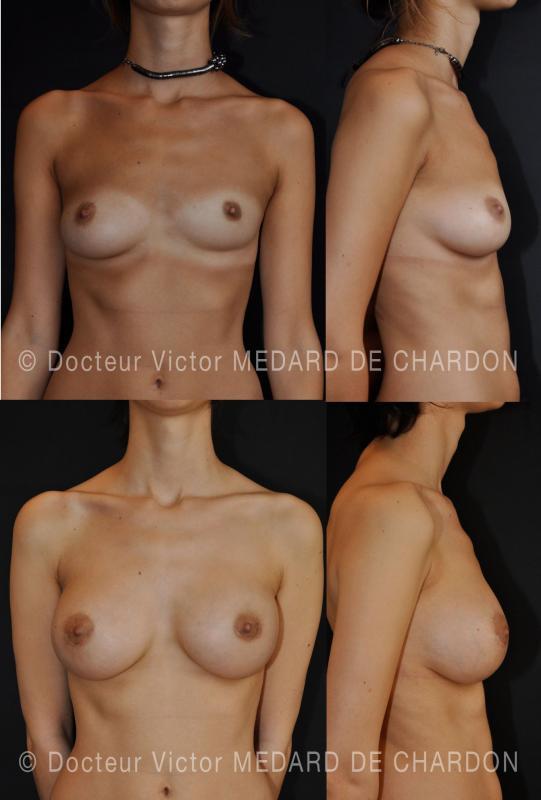 композит увеличение груди на грудном и груди асимметрии