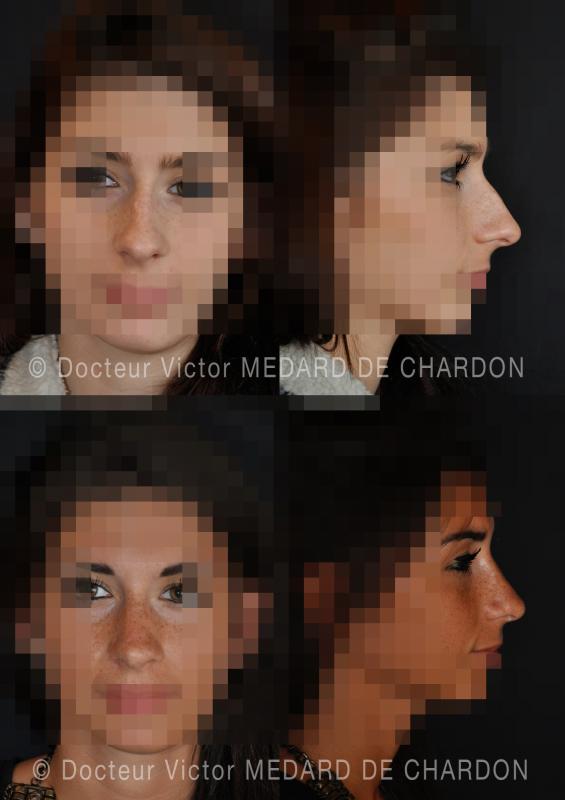 Косметическая операция на носу
