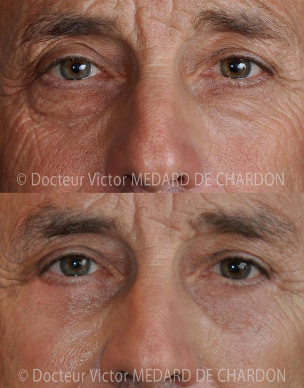 Пластика век для удаления избытка кожи и темных кругов у мужчин
