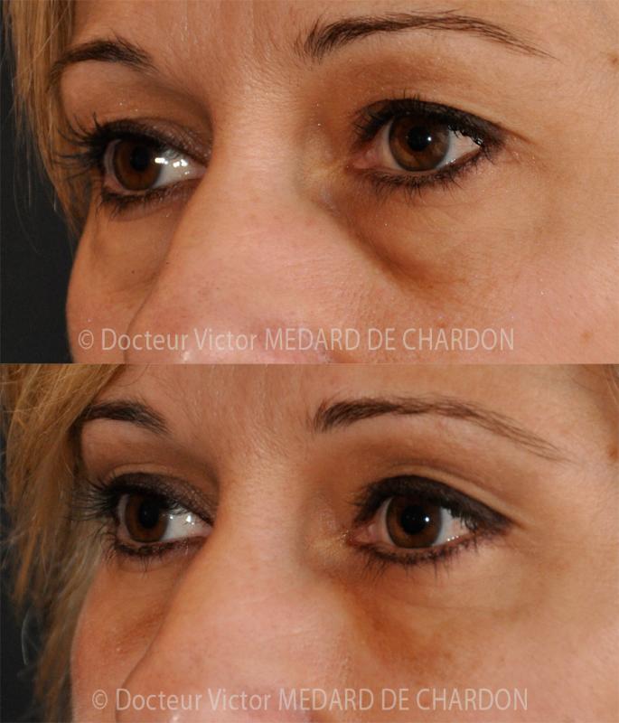 Пластика век для удаления избытка кожи под глазами и темных кругов или впадин под глазами