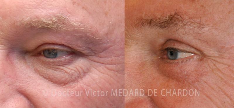 Пластика век для удаления избытка кожи под глазами, впадин и устранения вялости кожи век
