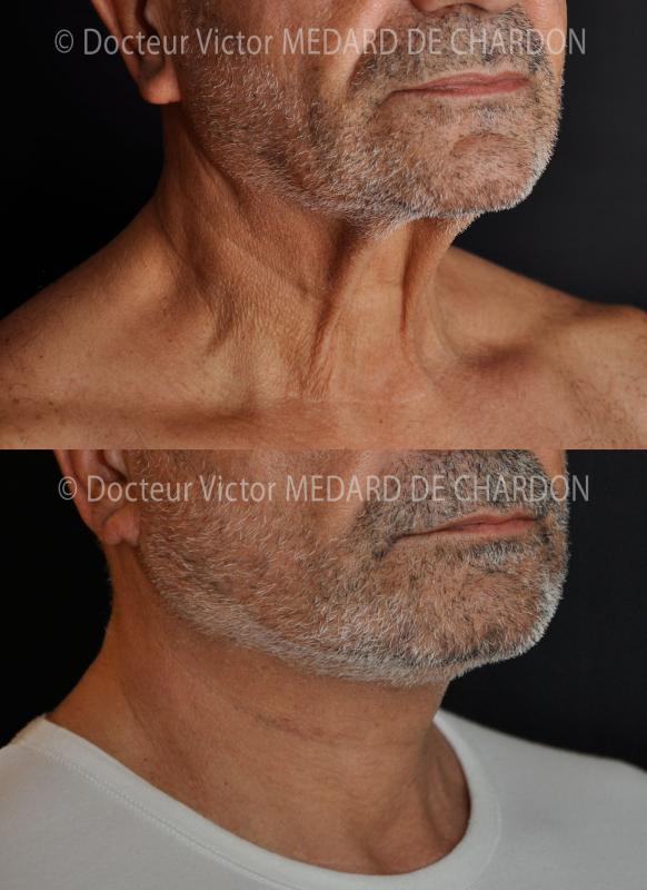 Facelift и шеи