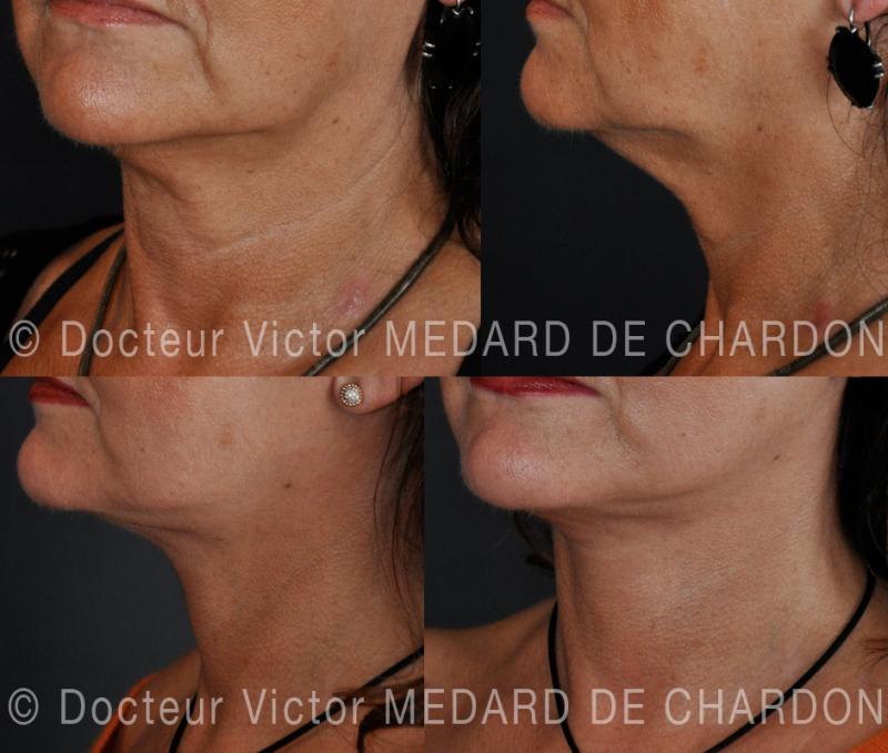 Подтяжка лица и шеи: шейно-лицевая подтяжка
