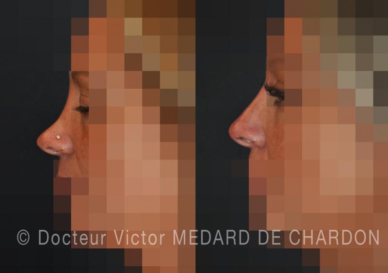 инъекция ботокса для устранения морщин в углах глаз