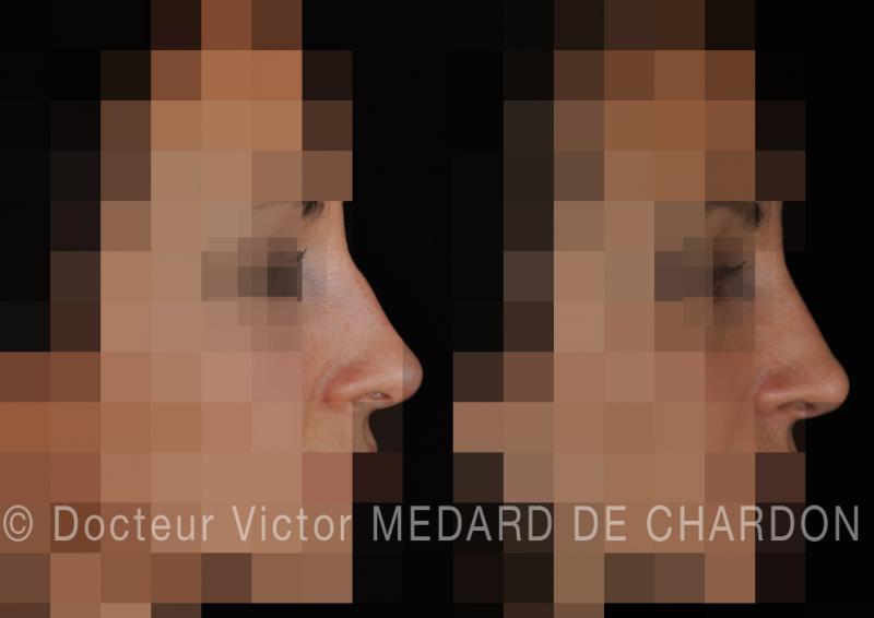 Медицинская ринопластика при горбинке на носу