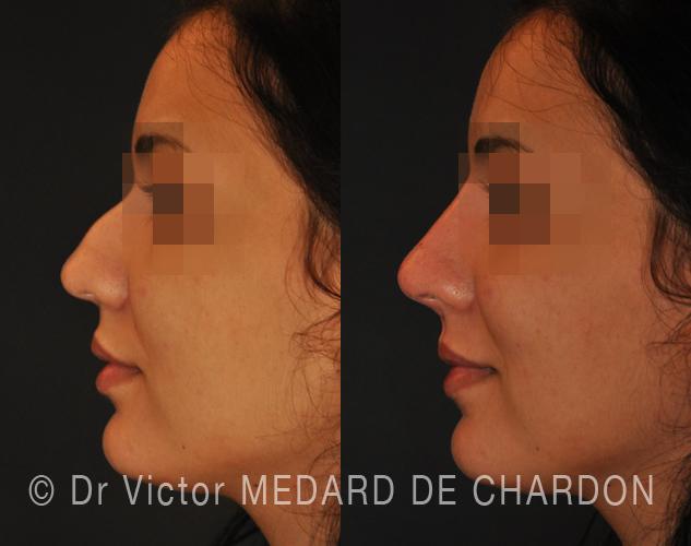 Инъекции нос гиалуроновой кислотой