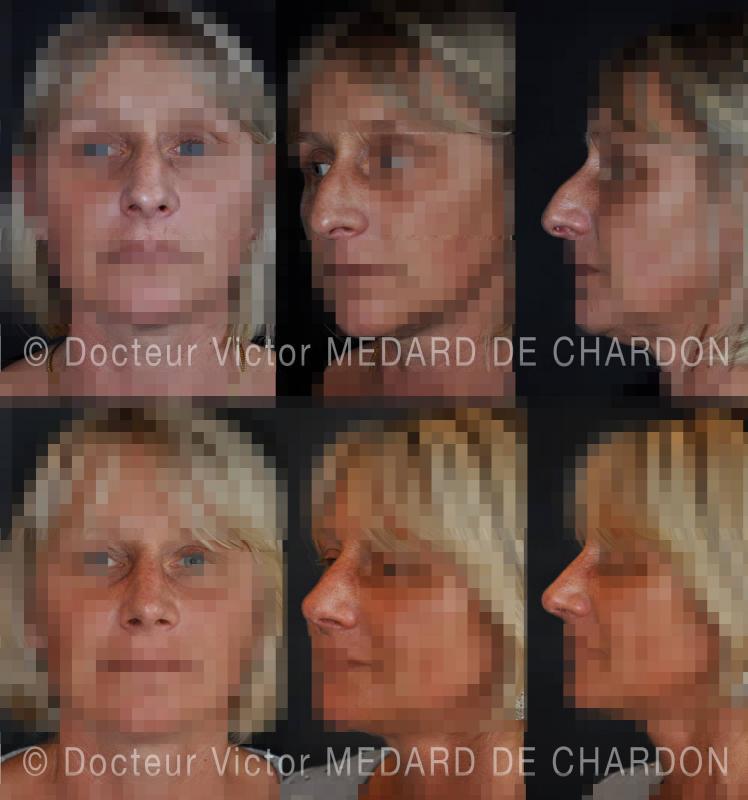 Открытая ринопластика: удаление горбинки, опускание крыльев носа и поднятие кончика. Результат через 6месяцев