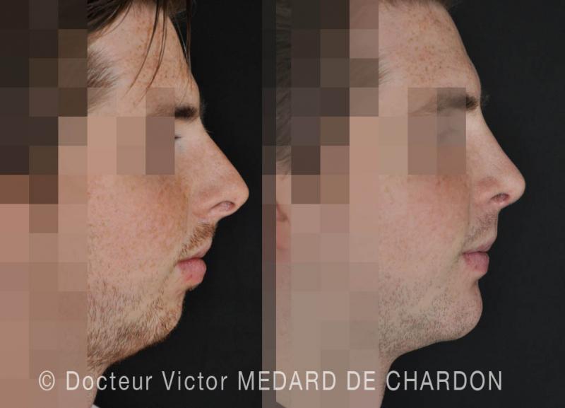 пластика профиля лица: ринопластика и гениопластика
