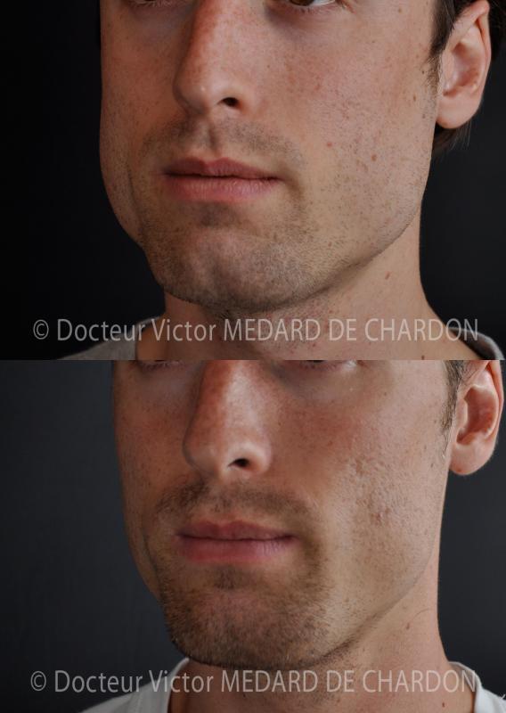 Выраженные линии челюсти