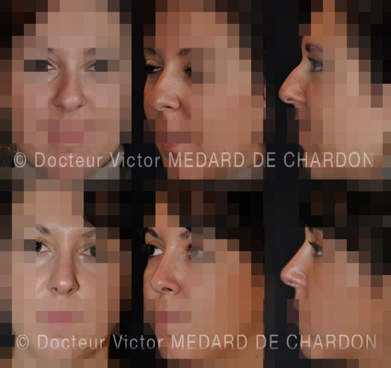 Ринопластика— косметическая операция на носу