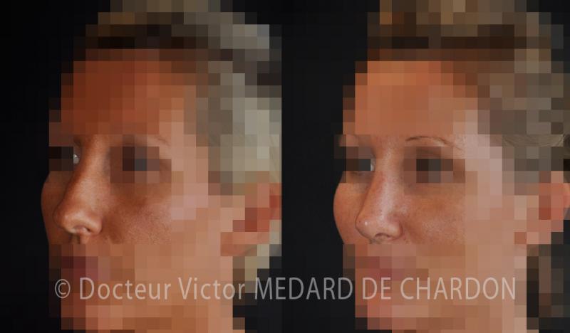 Ринопластика при горбинке на носу у женщин