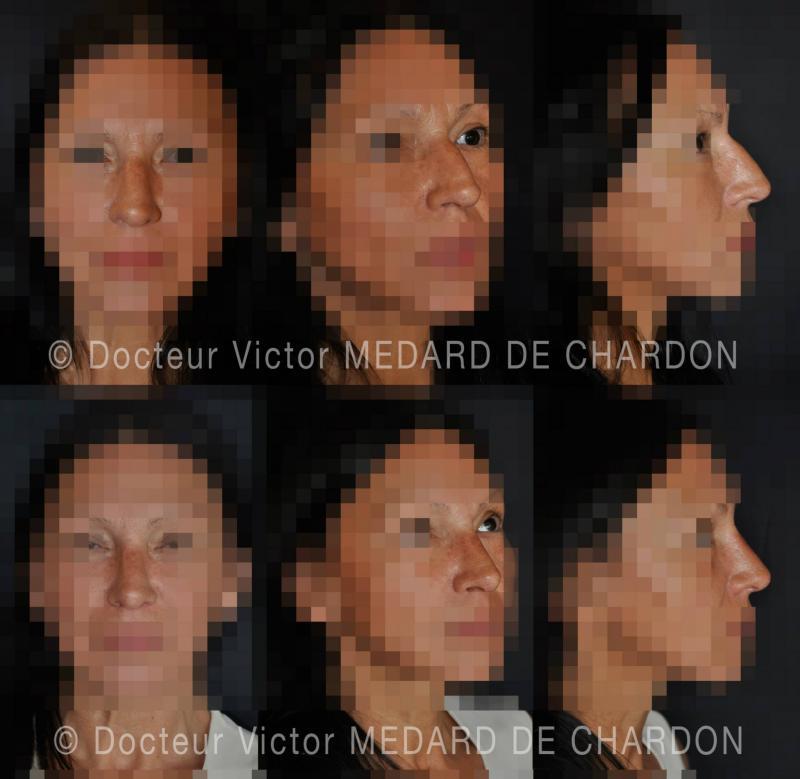 Ринопластика при горбинке на носу