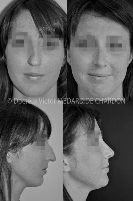 Ринопластика длинного искривленного носа с горбинкой и опущенным кончиком