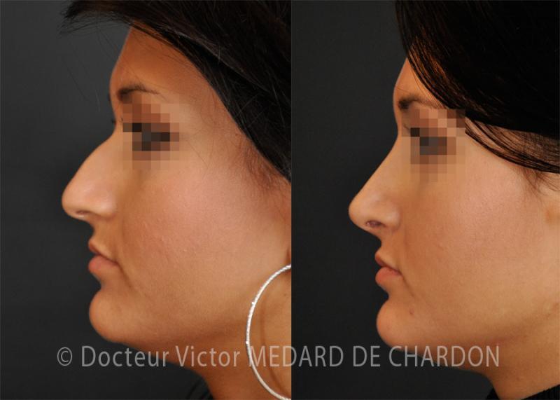 Ринопластика носа широкая верхушка и удар. Результат: 1 год