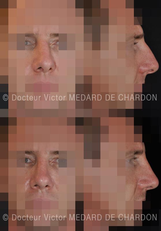 Ринопластика искривленного носа с нарушением проходимости