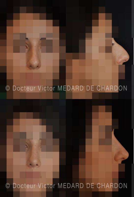 Ринопластика: снижение шишка на носу, небольшое расширение спинке, уменьшение кончика. Результат: 1 год