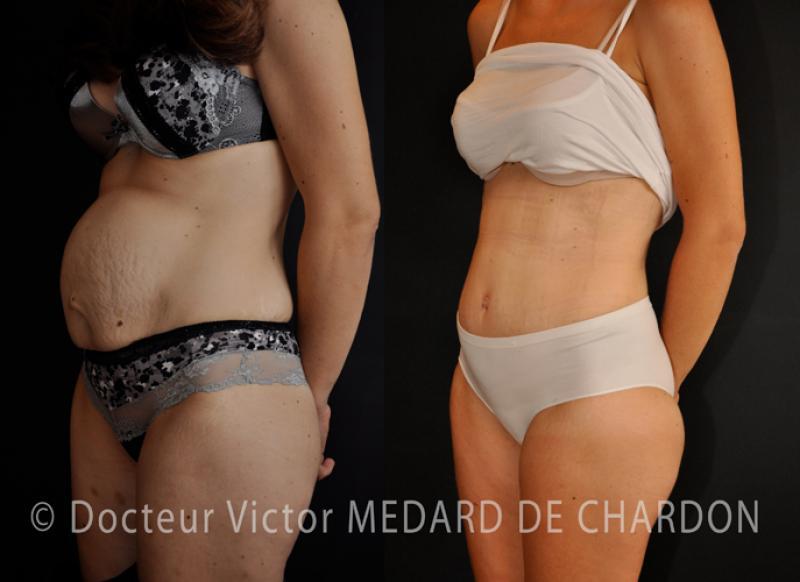 Круглый живот, диастаз прямой мышцы живота и растяжки после беременности двойней