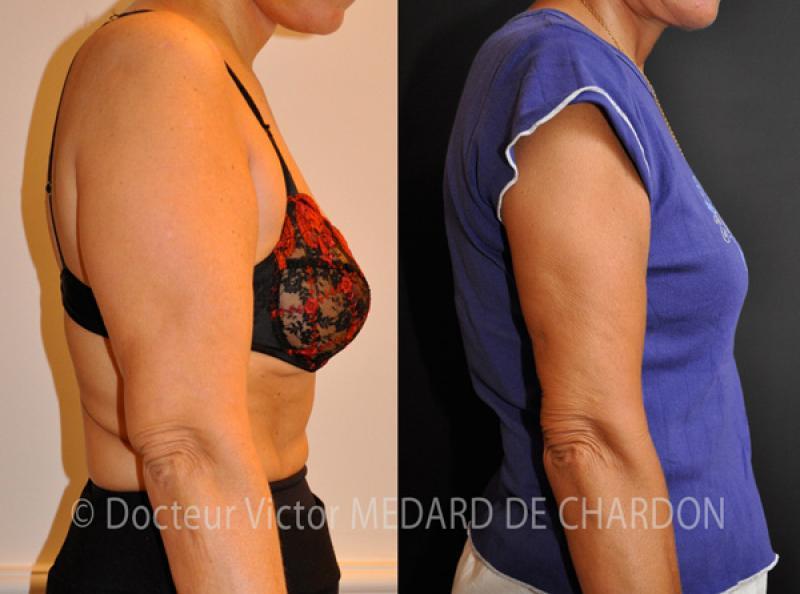 Обвисшие руки и избыток жировой ткани