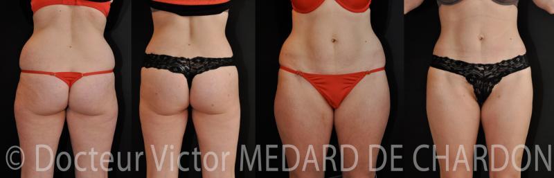 Стеатомерия таза и бедер и впадин по бокам ягодиц