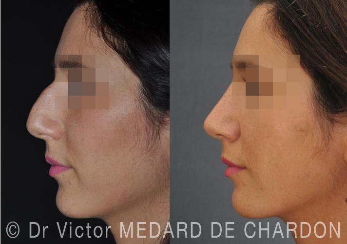 Эстетическая пластика носа